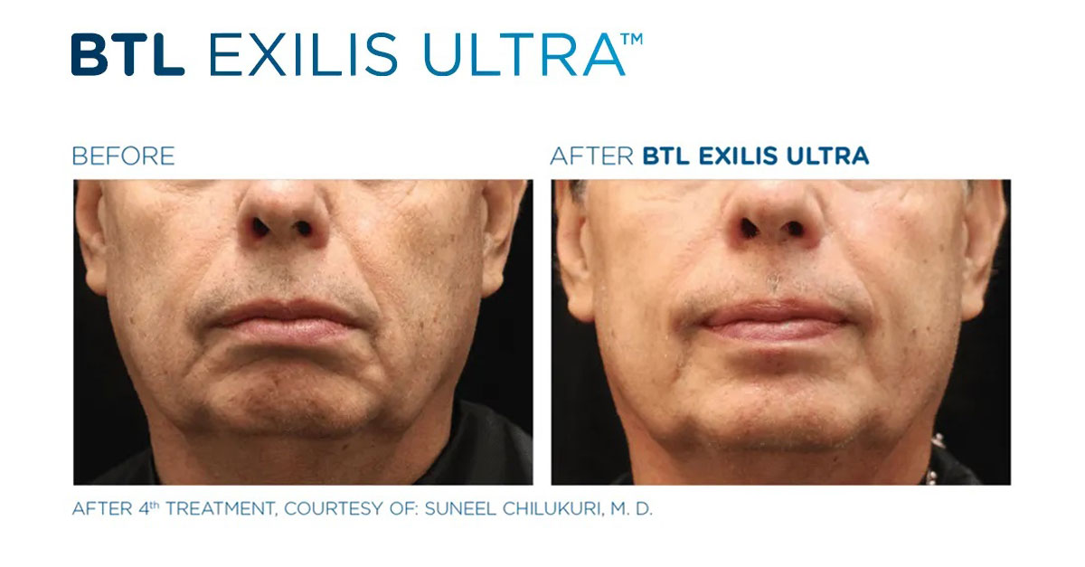 Exilis Ultra Before & After 3
