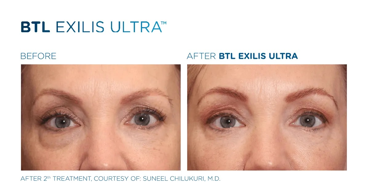 Before & After Exilis Ultra