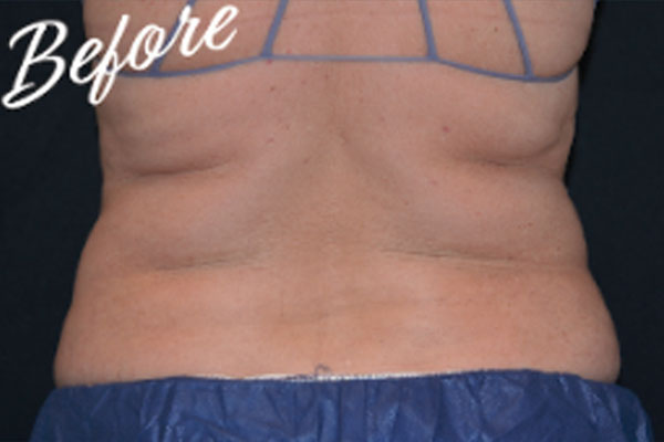 Before Coolsculpting female back