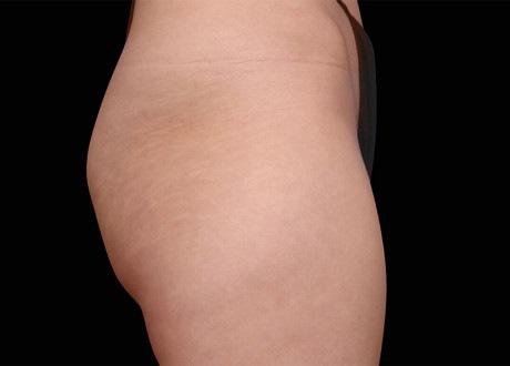 Female buttocks before EMSCULPT