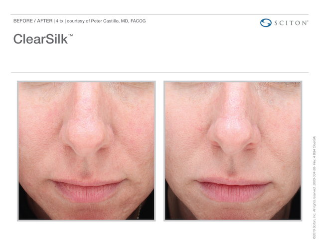 Clearsilk before and after